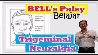 3 Hari Tak Bisa Makan Akibat Nyeri Wajah Trigeminal Neuralgia Akhirnya Sembuh Dengan RF.