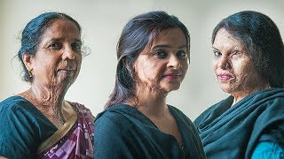 Make Love Not Scars: Acid Attack Survivors Get A Second Chance