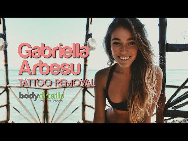 Laser Tattoo Removal Works | Gabriella Arbesu | Body Details