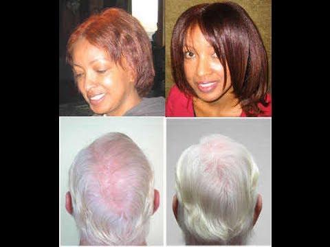 hair-loss-~-my-story-~-arganlife-review