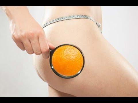 Cellulite - 10 Drenanti Naturali per combatterla e dimagrire