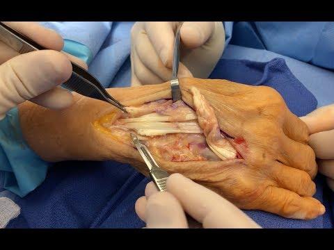 Cara Mengobati CTS (Carpal Tunnel Syndrome) / Jari-jari  tangan kesemutan..