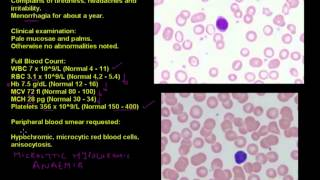 Anaemia in a young woman - Haematology case studies