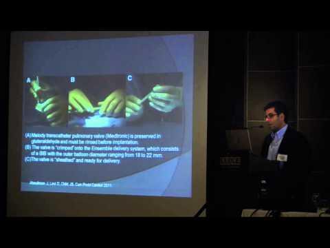 Transcatheter Valve Replacement | Ahmanson/ UCLA Congential Heart Disease Center