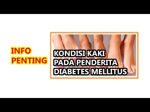 kaki-penderita-diabetes-sangat-rentan-terhadap-komplikasi.