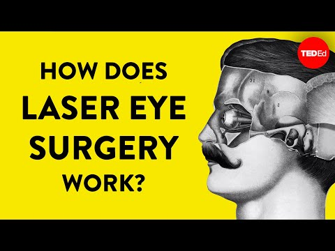 Video image: How does laser eye surgery work? - Dan Reinstein