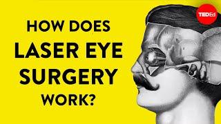How does laser eye surgery work? - Dan Reinstein