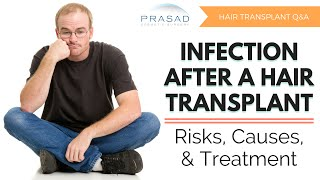Possible Causes of Infection after Hair Transplant, and Treatment Options