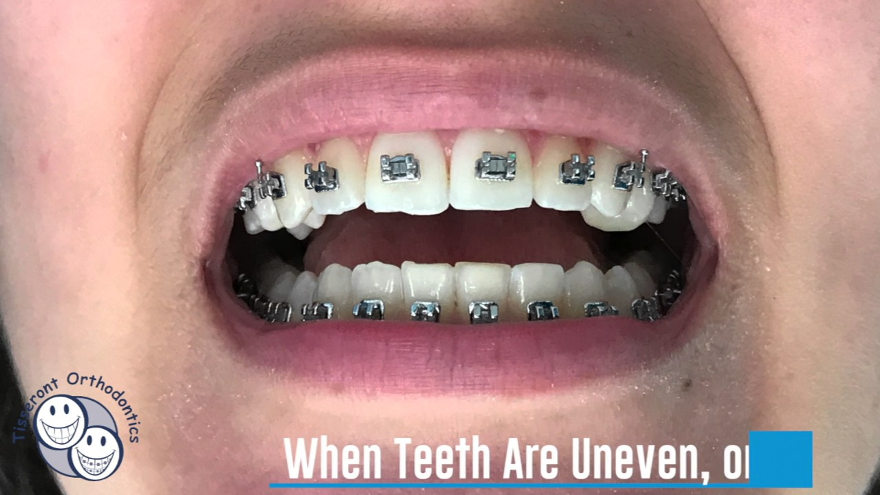 Why do Teeth Need Recontouring? [Orthodontic Care]