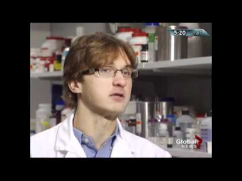 Botox research at Univeristy of Calgary - Global TV Calgary The Early News