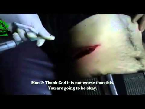 SNN | Syria | Latakia | Wounded by Regime, Only Sub-Par Facilities Available | Feb 27, 2013