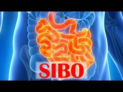 small-intestinal-bacterial-overgrowth-(sibo)