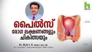 പൈൽസ് രോഗ ലക്ഷണങ്ങളും ചികിത്സയും | How to get rid of piles | Malayalam health tips