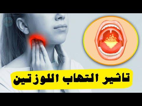 تاثير التهاب اللوزتين على الجسم