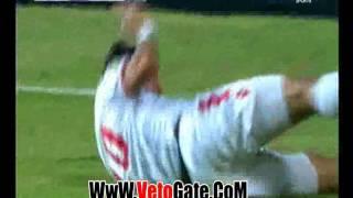 محمد إبراهيم يتعرض لإصابة مروعة أمام صن داونز (فيديو)   المصري اليوم
