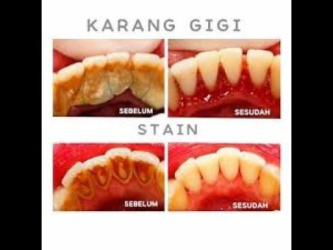 Bersihkan Karang Gigi Membandel Dengan Cara Ini Sudah Terbukti Lho