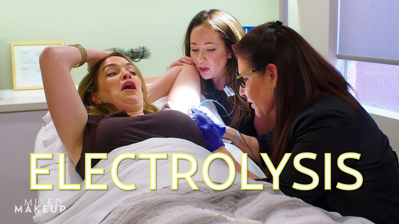 Is Electrolysis the Best Hair Removal Method? | The SASS with Susan and  Sharzad