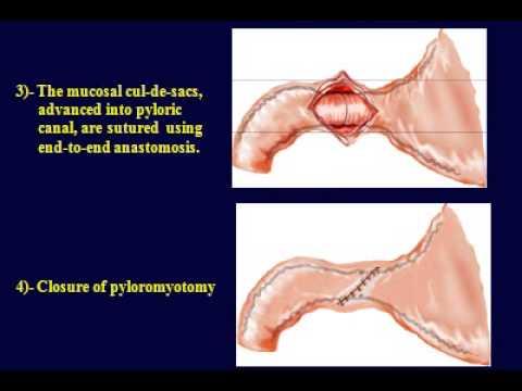 Pyloric atresia reconstruction - Dessanti technique - YouTube