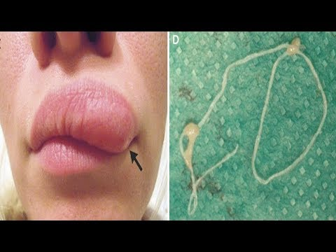 Moving Lump on woman's face turns out to be a Parasitic Worm