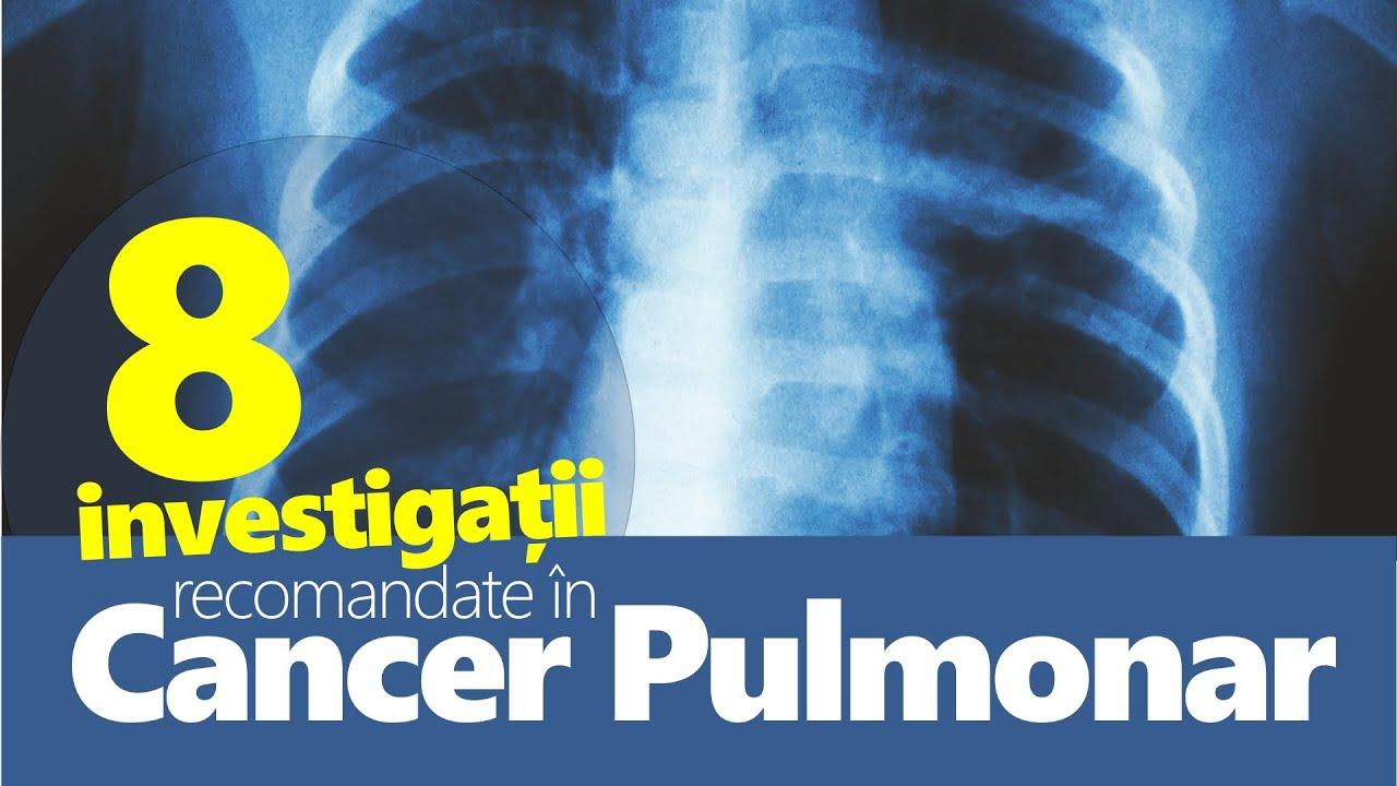Operatii de Varice – Dr. Toni Feodor – Clinica Dr. Irimia – Centru medical Pitesti, Arges