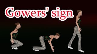 Gower s sign - gowers' maneuver _ Sign of proximal muscle weakness thumbnail