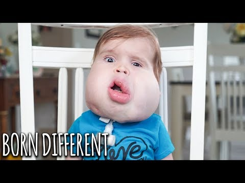 Gavin: Our Little Boy With Facial Cysts | BORN DIFFERENT