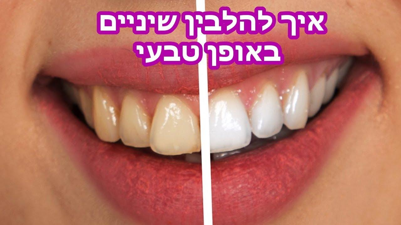 איך להלבין שיניים