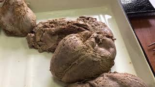 Сосуды сердца ч.1 (анатомия)