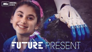How 3-D Printed Arms Are Changing Kids' Lives Around The World