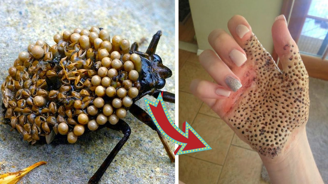 Download 10 Animals You Should Never Touch