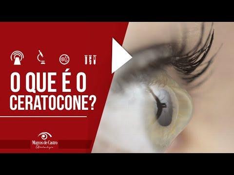 f086d8cf8 Ceratocone e a adaptação de Lentes Esclerais para pacientes - Dr. Marcos de  Castro