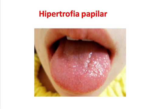 HIPERTROFIA PAPILAR - YouTube