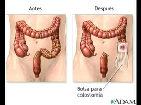 colon irritable- digestion- detox- limpieza intestinal- herbalife- vida sana y peso ideal