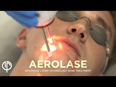 Laser Treatment | Acne, Melasma, Rosacea | Acne Spot Treatment | Rosacea Treatment by Dr. Jason Emer