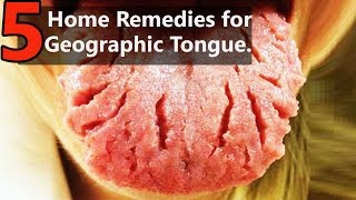 Top 5 Home Remedies for Treating Geographic Tongue | By Top 5.