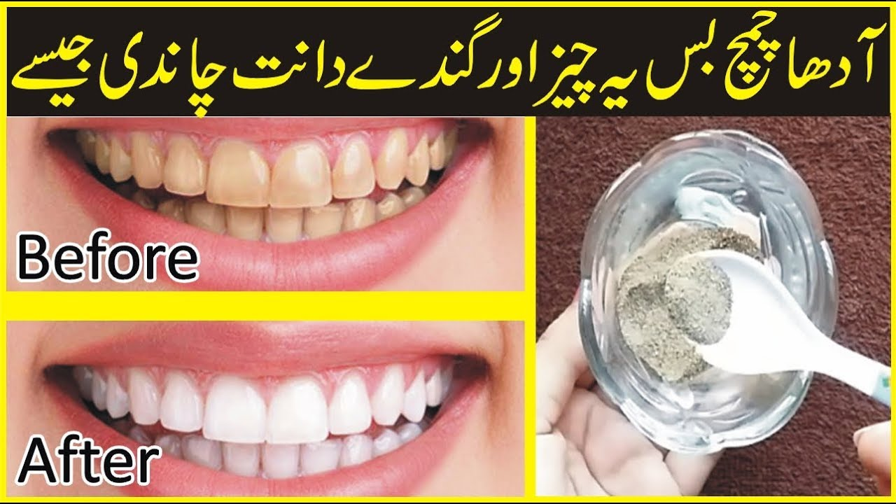 Teeth Whitening Home Remedy Beauty Tips In Urdu How To Get Rid