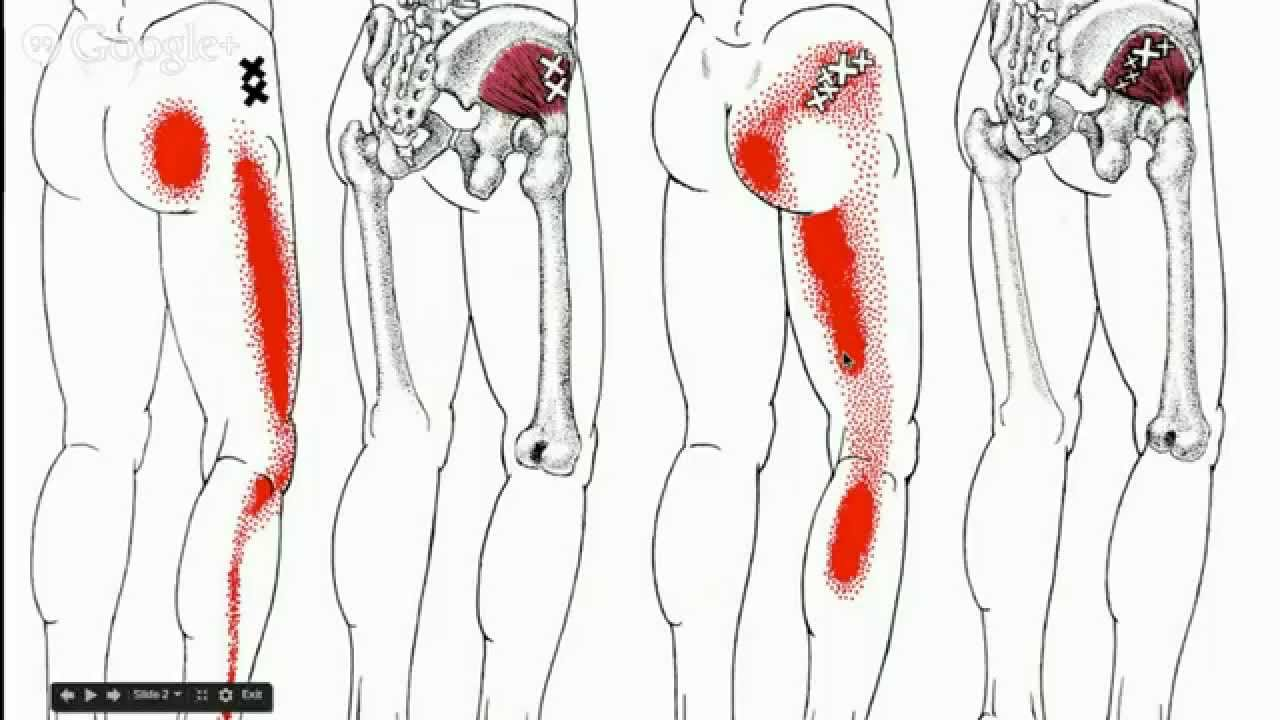 Low Back Pain Sciatica And Gluteal Trigger Points Youtube