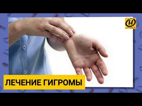 На правой руке на запястье шишка и болит