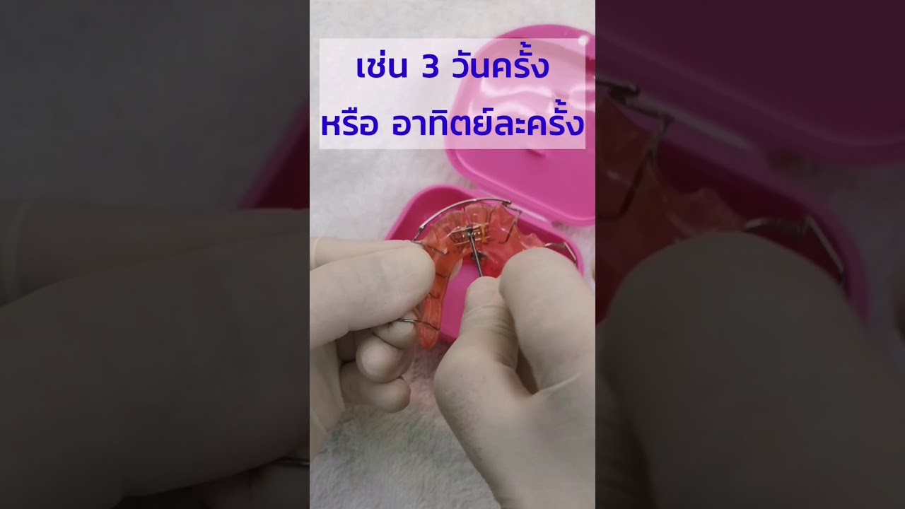 ไขสกรูจัดฟัน แต่ละครั้งได้ที่เพิ่มในแนวฟันมากไหม ต้องไขสกรูเพื่อจัดฟันตอนไหน /จัดฟันมายเดนท์