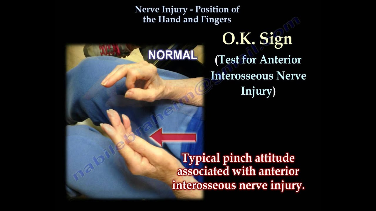 Nerve Injury, Positions Of The Hand - Everything You Need To Know ...