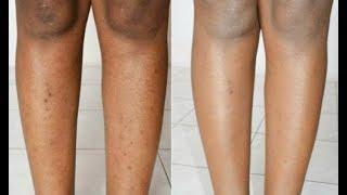 Pernas como remover cicatrizes contusões e das