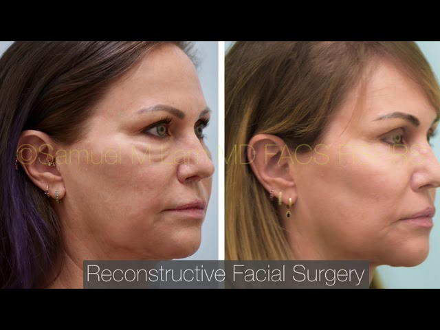 Dallas Reconstructive Facial Surgery Before and After