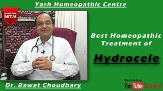 Best Homeopathic Treatment of Hydrocele | Yash Homeopathic Centre Jodhpur