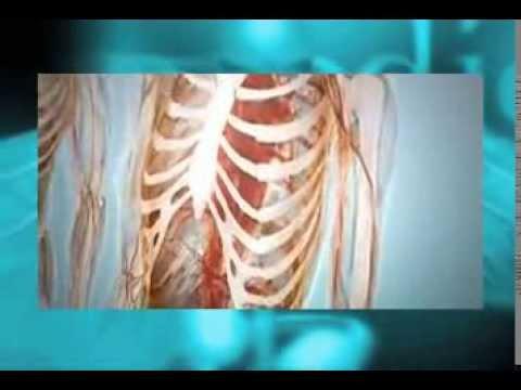Tiene cura la metastasis en los huesos