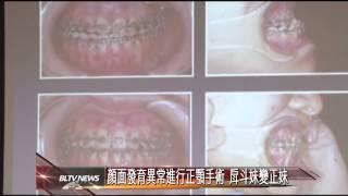 20150130 顏面發育異常進行正顎手術 戽斗妹變正妹