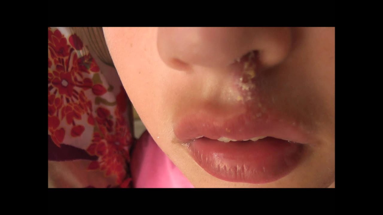 Impetigo Affecting The Upper Lip And The Nose Of A 10 Year