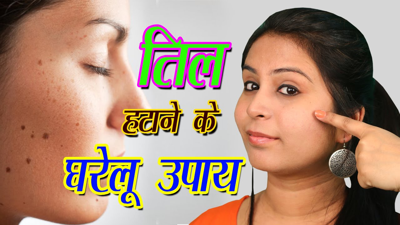 How To Remove Til From Face Naturally At Home