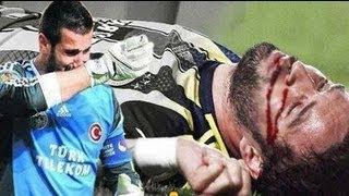 فيديو اصابة لاعب اصابة خطيرة