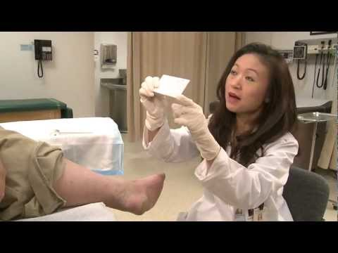 CLEAR - A Patient's Guide to Understanding Offloading Diabetic Foot Ulcers