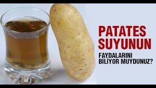 Patates Suyu'nun Faydaları Şaşırtıcı